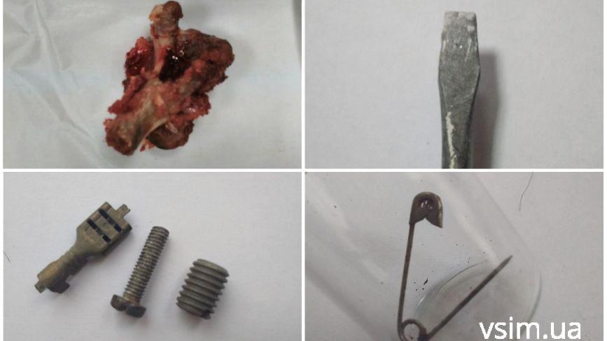 Від викрутки до свинячої кістки: ТОП-10 речей, які дістали з хмельницьких дітлахів
