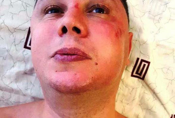 У Хмельницькому напали на антикорупціонера і голову «Автомайдану»