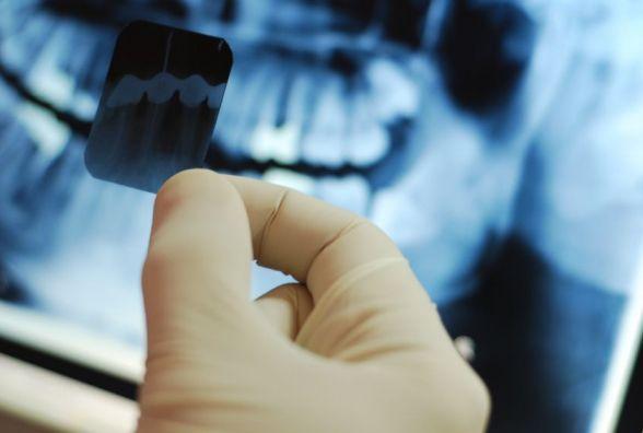 Рентген зубів українцям робитимуть прямо в їхніх будинках - МОЗ