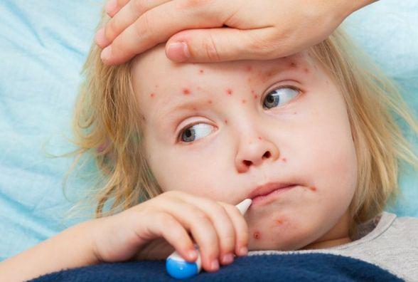 Хворих стає більше: кір діагностували у 15 хмельничан