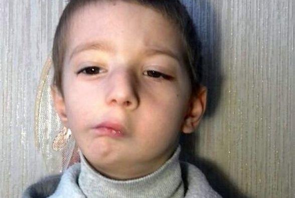 5-річний Ілля з Хмельницького готується до складної операції. Батьки просять про допомогу