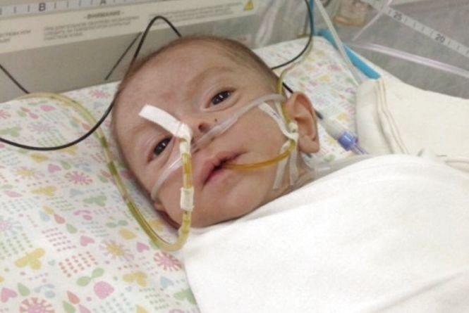 5-місячний Артурчик з Хмельницького потребує коштів на операцію. У хлопчика проблеми з кишечником