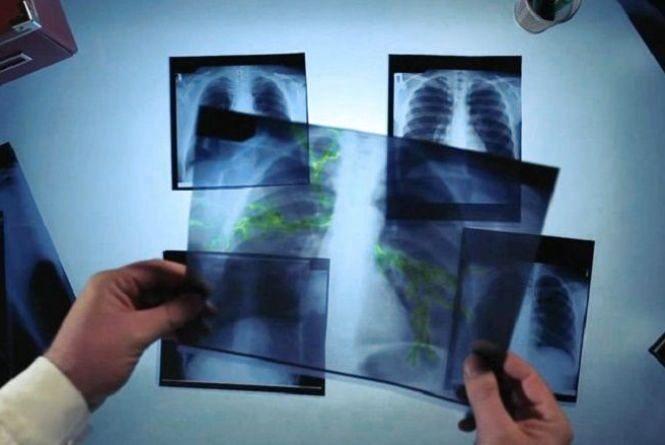 З початку року у Хмельницькому від туберкульозу померло 5 людей