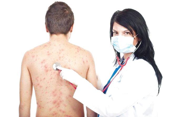 В Україні безкоштовно вакцинуватимуть від кору дорослих, які у зоні ризику