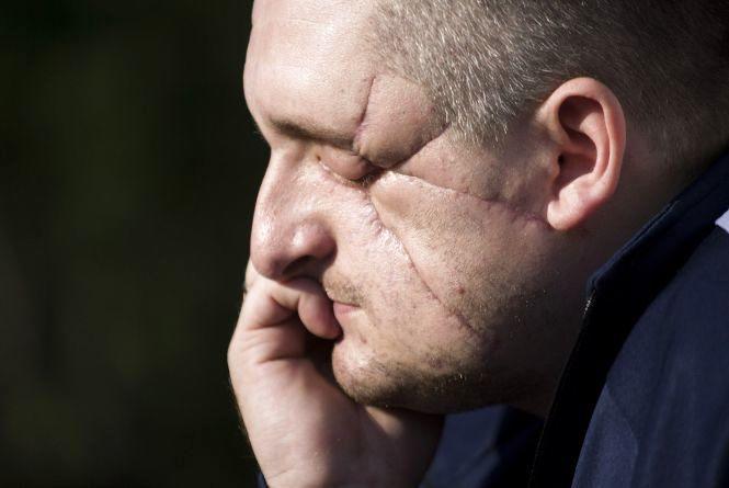 Втратив зір та ногу, але не надію: поранений в АТО офіцер з Хмельниччини бігтиме на марафоні у США