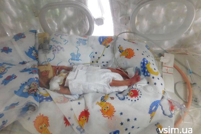 """Її вага 540 грамів, а вона вже """"борець"""": у хмельницькому пологовому народилося недоношене немовля"""