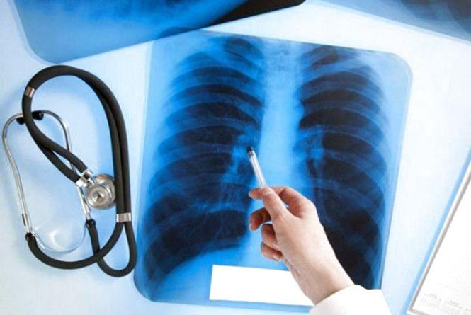 24 березня — День боротьби з туберкульозом
