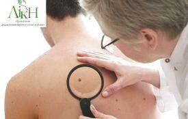 Що ви знаєте про родимки та догляд за шкірою? (ТЕСТ)